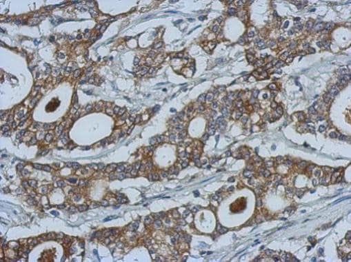 Immunohistochemistry (Formalin/PFA-fixed paraffin-embedded sections) - Anti-MMP10 antibody (ab227238)
