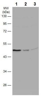 Western blot - Anti-Caspase-2 antibody (ab227241)