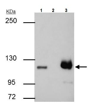 Immunoprecipitation - Anti-PARP1 antibody (ab227244)