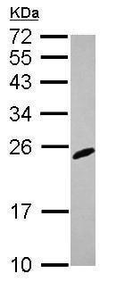 Western blot - Anti-RGS2 antibody (ab227251)