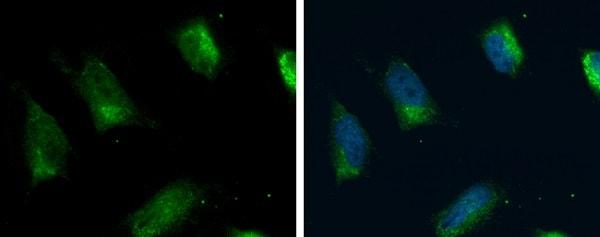 Immunocytochemistry/ Immunofluorescence - Anti-FACL4 antibody (ab227256)
