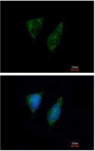 Immunocytochemistry/ Immunofluorescence - Anti-DAP3 antibody (ab227257)