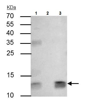 Immunoprecipitation - Anti-beta 2 Microglobulin antibody (ab227261)