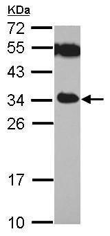 Western blot - Anti-TICAM2 antibody (ab227271)
