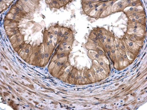 Immunohistochemistry (Formalin/PFA-fixed paraffin-embedded sections) - Anti-COASY antibody (ab227272)