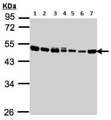 Western blot - Anti-EEF1A2 antibody (ab227275)