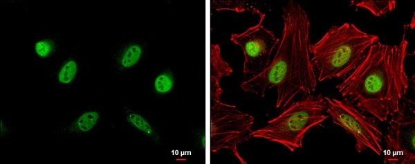 Immunocytochemistry/ Immunofluorescence - Anti-Cyclin A2 antibody - C-terminal (ab227277)
