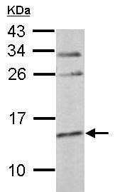 Western blot - Anti-Cystatin C antibody - C-terminal (ab227279)