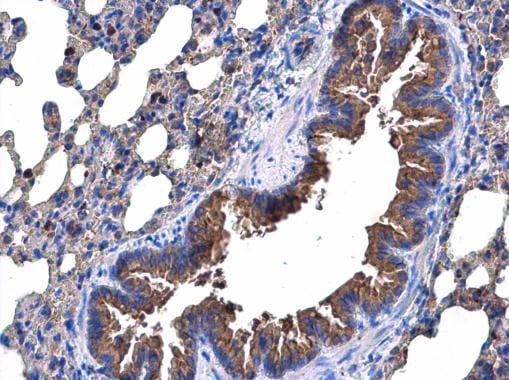 Immunohistochemistry (Formalin/PFA-fixed paraffin-embedded sections) - Anti-p53R2 antibody (ab227291)