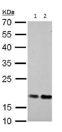 Western blot - Anti-Cofilin antibody (ab227299)