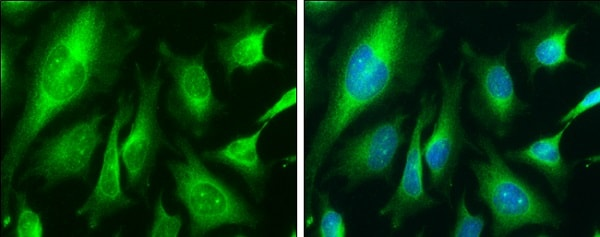 Immunocytochemistry/ Immunofluorescence - Anti-Calnexin antibody (ab227310)