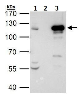 Immunoprecipitation - Anti-STAT2 antibody - C-terminal (ab227312)