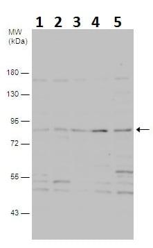 Western blot - Anti-PI 3 Kinase p85 alpha antibody - N-terminal (ab227313)