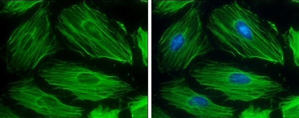 Immunocytochemistry/ Immunofluorescence - Anti-beta Actin antibody (ab227387)