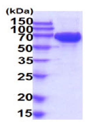 SDS-PAGE - Recombinant Human c-Kit protein (His tag) (ab227397)