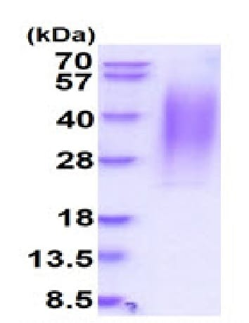 SDS-PAGE - Recombinant Human CD164 protein (His tag) (ab227398)