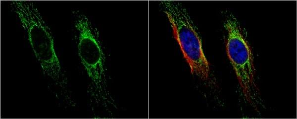 Immunocytochemistry/ Immunofluorescence - Anti-EPF antibody (ab227428)