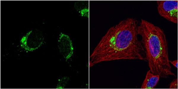 Immunocytochemistry/ Immunofluorescence - Anti-EPF antibody (ab227428)