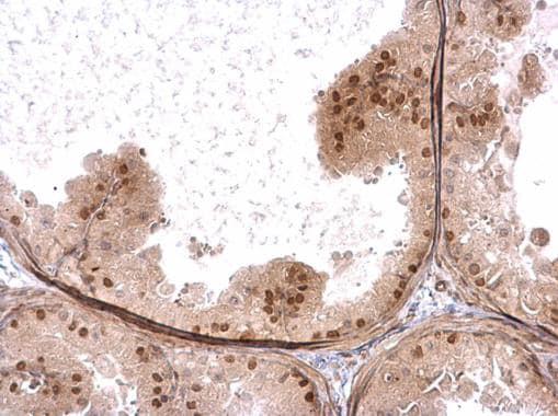 Immunohistochemistry (Formalin/PFA-fixed paraffin-embedded sections) - Anti-ZNFN1A2/HELIOS antibody (ab227429)