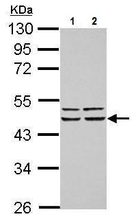 Western blot - Anti-FBXO4/FBX4 antibody (ab227442)