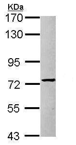 Western blot - Anti-PRMT5 antibody - N-terminal (ab227457)
