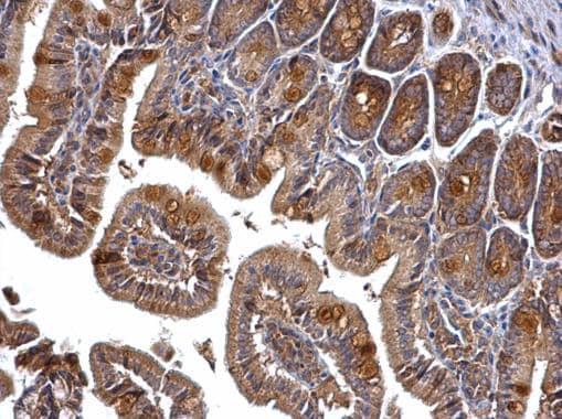 Immunohistochemistry (Formalin/PFA-fixed paraffin-embedded sections) - Anti-PRMT5 antibody - N-terminal (ab227457)