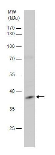 Western blot - Anti-HSH2D antibody (ab227462)