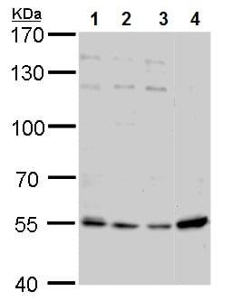 Western blot - Anti-Visfatin antibody (ab227474)