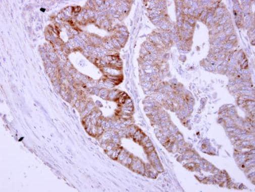 Immunohistochemistry (Formalin/PFA-fixed paraffin-embedded sections) - Anti-ASB8 antibody (ab227475)