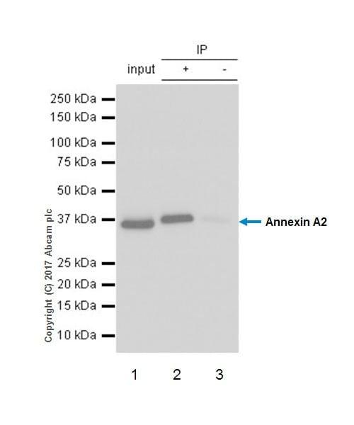 Immunoprecipitation - Anti-Annexin-2/ANXA2 antibody [EPR18157-104] - BSA and Azide free (ab227486)
