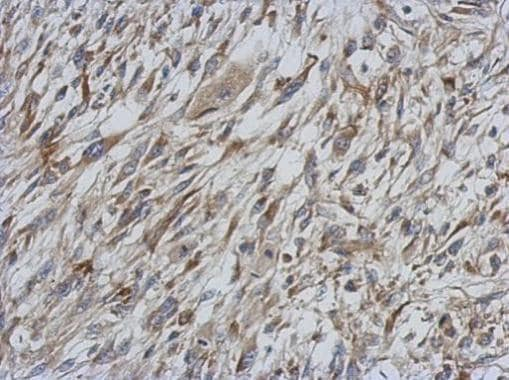 Immunohistochemistry (Formalin/PFA-fixed paraffin-embedded sections) - Anti-STAT6 antibody (ab227497)