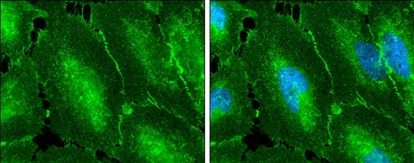 Immunocytochemistry/ Immunofluorescence - Anti-beta Catenin antibody - ChIP Grade (ab227499)