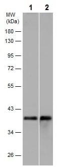 Western blot - Anti-CerS2 antibody (ab227501)