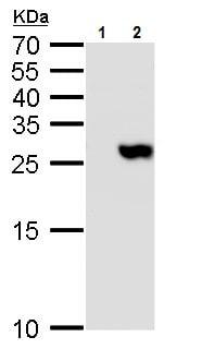 Western blot - Anti-TMS1/ASC antibody (ab227502)