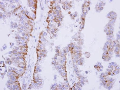 Immunohistochemistry (Formalin/PFA-fixed paraffin-embedded sections) - Anti-SHP1 antibody (ab227503)