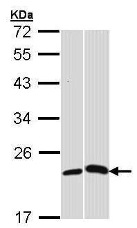 Western blot - Anti-C Reactive Protein antibody (ab227507)