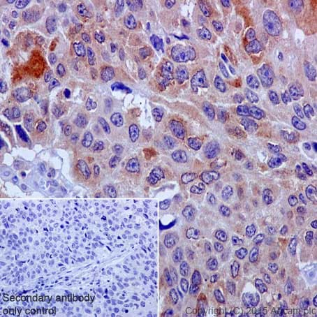 Immunohistochemistry (Formalin/PFA-fixed paraffin-embedded sections) - Anti-COX2 / Cyclooxygenase 2 antibody [EPR12012] - BSA and Azide free (ab227528)