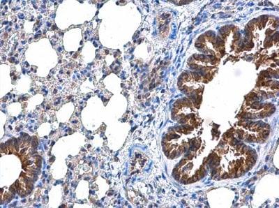 Immunohistochemistry (Formalin/PFA-fixed paraffin-embedded sections) - Anti-DOCK8 antibody (ab227529)