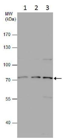 Western blot - Anti-Involucrin antibody - N-terminal (ab227530)