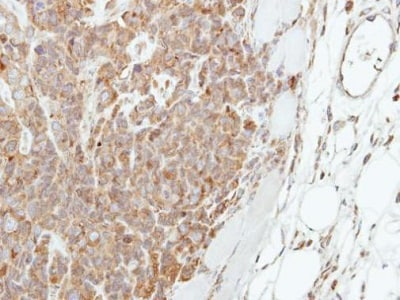 Immunohistochemistry (Formalin/PFA-fixed paraffin-embedded sections) - Anti-Involucrin antibody - N-terminal (ab227530)