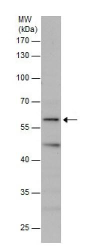 Western blot - Anti-DNAJC11 antibody (ab227531)