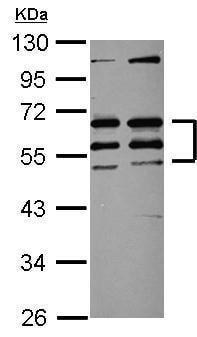 Western blot - Anti-CREST antibody (ab227535)