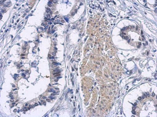 Immunohistochemistry (Formalin/PFA-fixed paraffin-embedded sections) - Anti-eIF5A2 antibody (ab227537)