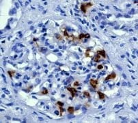 Immunohistochemistry (Formalin/PFA-fixed paraffin-embedded sections) - Anti-Cyclin D1 antibody [EP272Y] - BSA and Azide free (ab227561)