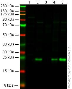 Western blot - Anti-TAGLN/Transgelin antibody [EPR21215] (ab227566)