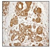 Immunohistochemistry (Formalin/PFA-fixed paraffin-embedded sections) - Anti-S100A9 antibody [EPR3555] - Low endotoxin, Azide free (ab227570)