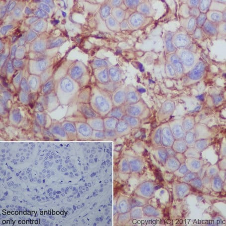 Immunohistochemistry (Formalin/PFA-fixed paraffin-embedded sections) - Anti-CD276 antibody [EPR20115] - BSA and Azide free (ab227577)