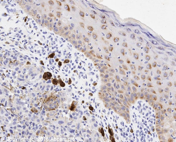 Immunohistochemistry (Formalin/PFA-fixed paraffin-embedded sections) - Anti-EGFR antibody [E234] - BSA and Azide free (ab227578)