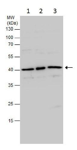 Western blot - Anti-PDX1 antibody (ab227586)