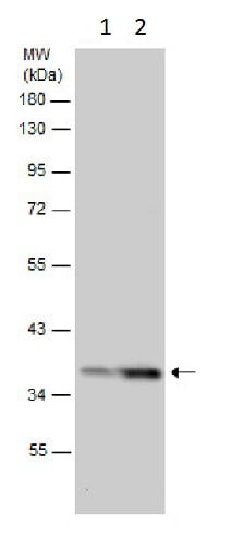 Western blot - Anti-elF2 alpha (phospho S52) antibody - N-terminal (ab227593)